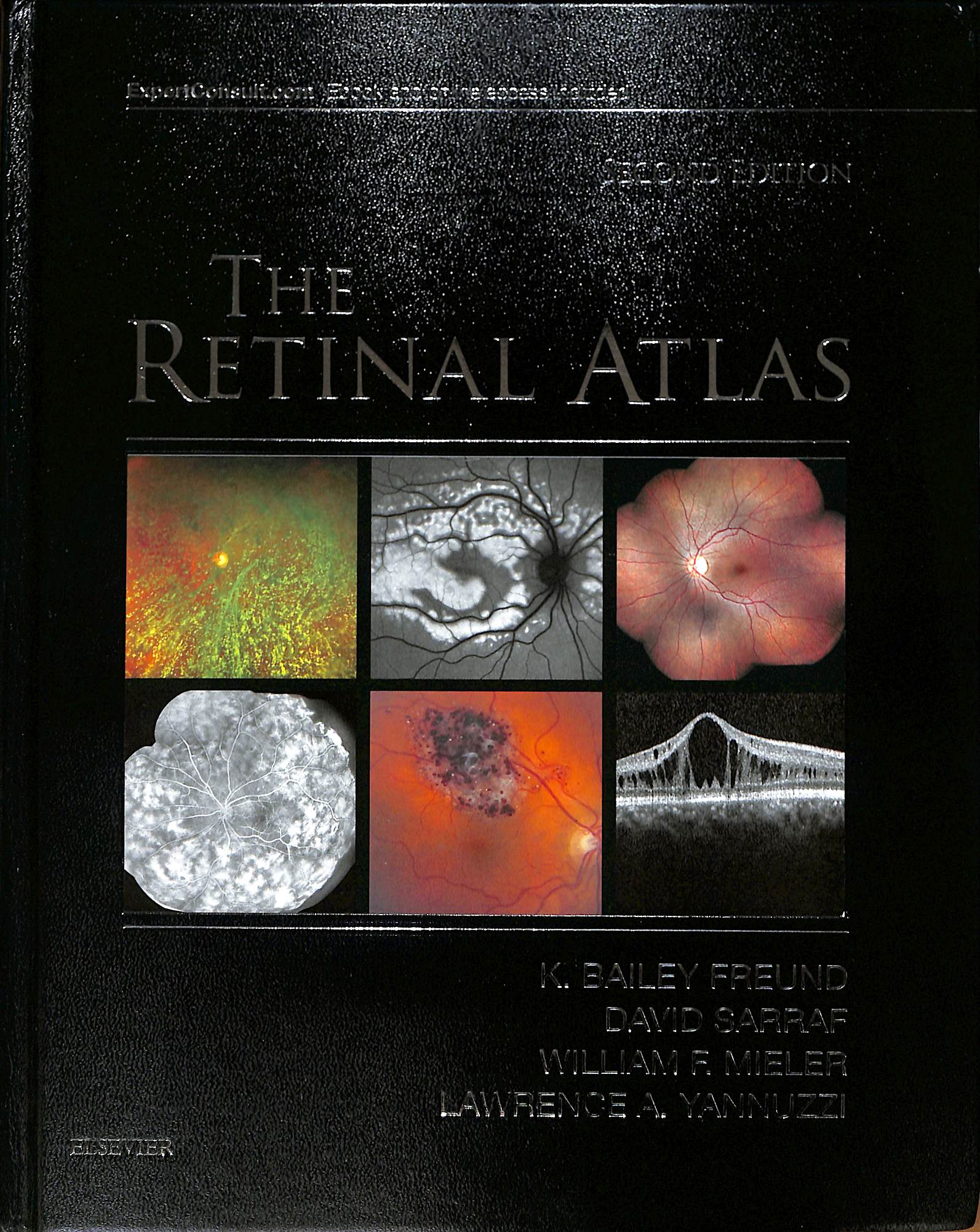 The retinal atlas second edition
